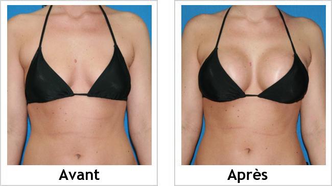 Photo augmentation mammaire avant après